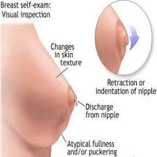 Early Pregnancy Nipples